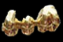 666 Dental Gold